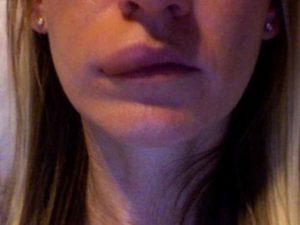 Сбоку верхняя губа опухла. Как помочь народными методами. Лечение отека у взрослых