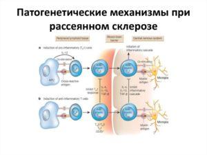 Что нельзя при рассеянном склерозе. Противопоказания при диагнозе РС. Рассеянный склероз (РС)