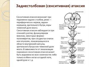 Сенситивная атаксия симптомы. Атаксия: симптомы, клиническая картина, причины. Симптомы сенситивной атаксии