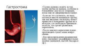 Гастростомия показания. Наложение гастростомы (гастростомия): показания, проведение, жизнь после. Подготовка к гастростомии