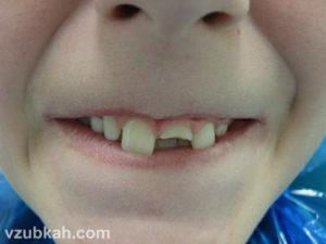 Как восстановить сломанный зуб. Сломал зуб что делать в первую очередь