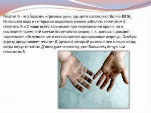 Пять болезней, передающихся через грязные руки. Как предотвратить болезнь грязных рук у детей