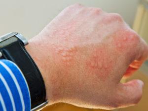 Аллергия на синтетическую одежду: симптомы и лечение. Почему возникает аллергия на синтетику