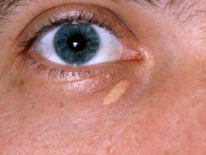 Лечение ксантелазмы век народными средствами. Ксантелазма век – отложение холестериновых бляшек на коже век