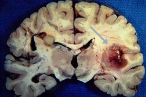 Туберкулез головного мозга: первые признаки и симптомы. Поражение головного мозга при туберкулезе Туберкулез головного мозга симптомы первые