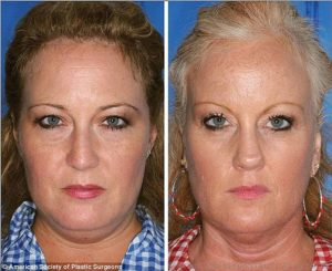 Волосы и кожа после отказа от курения. Народные средства для восстановления кожи. Как восстановить кожу после курения