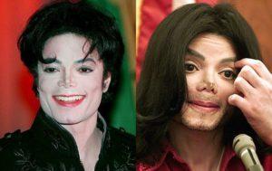 Почему майкл джексон был белым. Разрушаем мифы о Майкле Джексоне. Почему кожа Майкла Джексона побелела