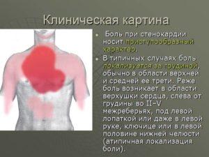 Почему колет сердце и трудно дышать. Как болит сердце: симптомы. Заболевания сердца: лечение