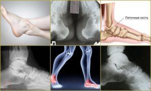Остеохондропатия пяточной кости у ребенка. Остеохондропатия пяточной кости у детей лечение народными средствами
