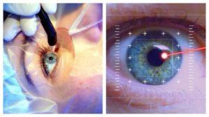 Вопросы лазерной офтальмологии. Виды современных лазерных систем в офтальмологии для коррекции зрения – плюсы и минусы Применение лазеров в офтальмологии