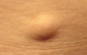 Воспалился и болит жировик: причины, методы лечения. Что делать при воспалении жировика