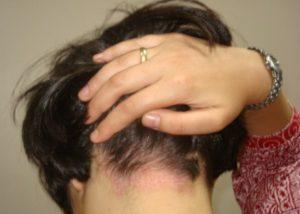 Чешется затылок головы: почему и как устранить зуд. Чешется затылок на голове у ребенка и женщин под волосами