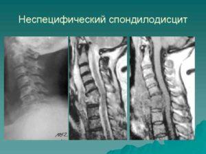 Лечение, симптомы и диагностика дисцита и спондилодисцита