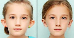 Как исправить лопоухость без операции у взрослых. Что делать, если торчат уши? Лопоухость – стоит ли избавляться