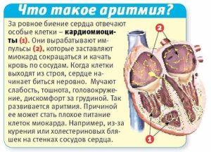 Слабо бьется сердце причины. Народные рецепты
