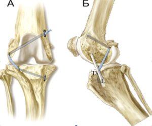 Разрыв крестовидной связки коленного сустава у собак: причины и как лечить. Разрыв коленных связок у собак