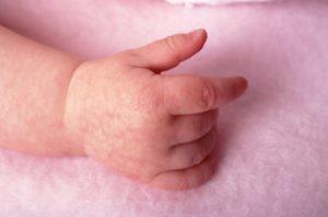 Мраморная кожа у грудничка причины комаровский. Мраморная кожа у взрослых, причины. Как помочь ребенку