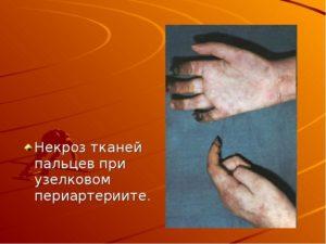 Лечение некроза кожи мягких тканей народными средствами. Лечение некрозов Некроз тканей ноги лечение в домашних условиях