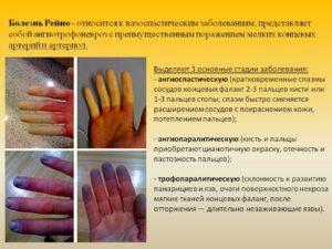 Болезнь (синдром) Рейно лечение народными средствами