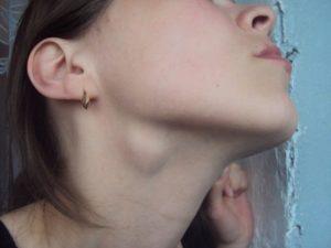 Твердая шишка под челюстью. О чем говорит опухоль под подбородком