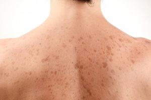 Солнечный грибок на коже: причины, симптомы и лечение. Солнечный грибок