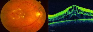 Макулярный отёк сетчатки глаза. Кистозный макулярный отек