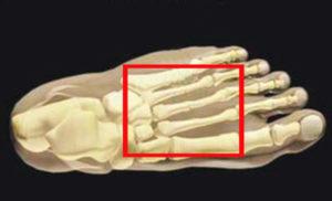 Эффективные способы лечения маршевого перелома. Диагностика и лечение маршевого перелома плюсневой кости стопы