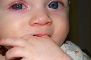 Конъюнктивит у младенца 2 месяца. Способы лечения у детей. Как лечить конъюнктивит у новорожденных