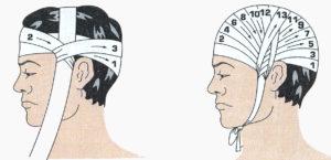 Медицинская повязка на голову как называется. Повязка чепец - техника наложения. Десмургия