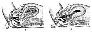 Ведение III периода родов акушеркой. Способы выделения отделившегося последа