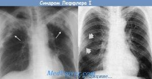 Эозинофильная пневмония (Легочная эозинофилия, Пневмония Лёффлера, Синдром Лера-Киндберга, Эозинофильный летучий инфильтрат легкого). Инфильтрация легочной ткани — что это такое и как лечить