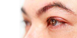 О методе лечения красной нитью. Как избавиться от ячменя на глазу — научила бабушка, советы проверенные временем