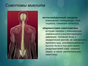 Поперечный миелит — виды, симптомы, методы лечения. Миелит — воспаление спинного мозга Поперечный миелит лечение