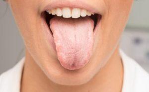Дискомфорт во рту причины. Другие вероятные причины жжения. Лечение жжения во рту и на языке