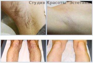 Неравномерный рост волос на груди мужчины. Зачем человеку волосы на ногах? Почему растут волосы на ногах