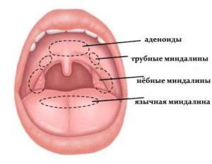 Гиперплазия язычной миндалины: симптомы, лечение, профилактика