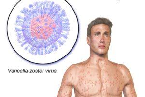 Инфекция, вызываемая вирусом варицелла-зостер. Вирус Варицелла-Зостер — возбудитель ветряной оспы и опоясывающего лишая: подробная клиническая картина