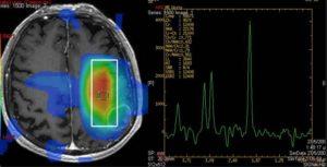 Магнитно резонансная протонная спектроскопия. Метод магнитно-резонансной (МР) спектроскопии головного мозга – что это такое. Электромагнитная совместимость с медицинской аппаратурой
