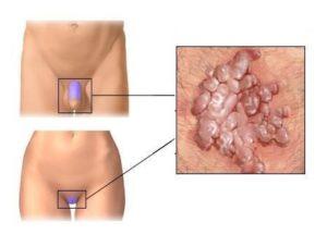 Трещины на половых губах при молочнице. Трещины на половых губах - причины, лечение