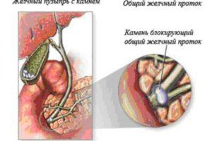 Забиты желчные протоки. Лечение обструкции желчных путей. Патогенез закупорки желчных путей