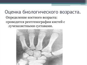 Определение костного возраста. Как определить костный возраст по рентгену кисти