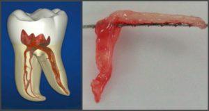 Продуло и заболел зуб. Лечение застуженного зубного нерва