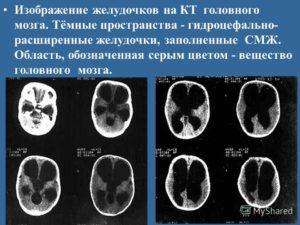Расширение боковых желудочков мозга. Расширение желудочков головного мозга: последствия увеличения и асимметрии у новорожденных и грудничков