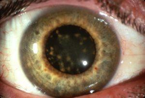 Металлозы глаза: сидероз, халькоз. Сидероз глаза – это Манжетка обыкновенная Alchimilla vulgaris L