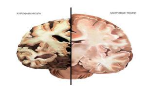 Умеренные атрофические изменения вещества головного мозга. Атрофия (отмирание клеток) головного мозга
