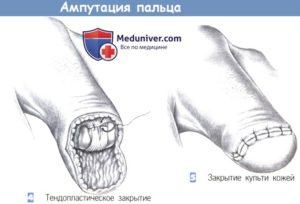 Ампутация 1 пальца стопы техника операции. Экзартикуляция и ампутация конечностей: показания, техника, осложнения. С целью обезболивания