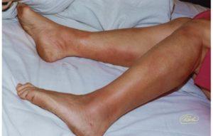 Панникулит – что это. Панникулит — симптомы и лечение Панникулит при аутоиммунных заболеваниях какие осложнения