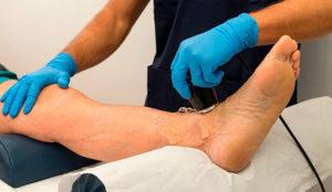 Как обследовать сосуды. Как в домашних условиях проверить состояние сосудов организма. В каких случая проводят обследование сосудов ног