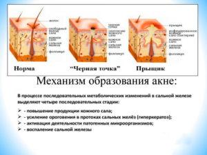 Таблетки для сальных желез. Препараты других групп. Как образуются сальные пробки. Последствия