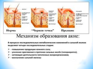 Если сальная железа воспалена как лечить. Воспаление сальной железы – основные причины и методы терапии